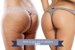 How to get rid of cellulite TheFuss.co.uk