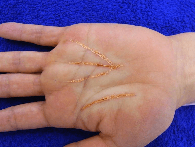 palm-altering