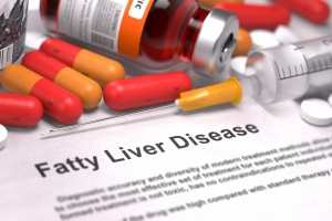 Best diet for fatty liver disease TheFuss.co.uk