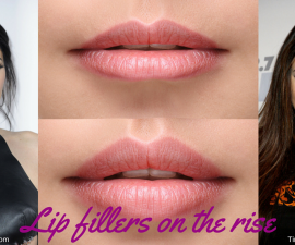 Lip fillers on the rise TheFuss.co.uk