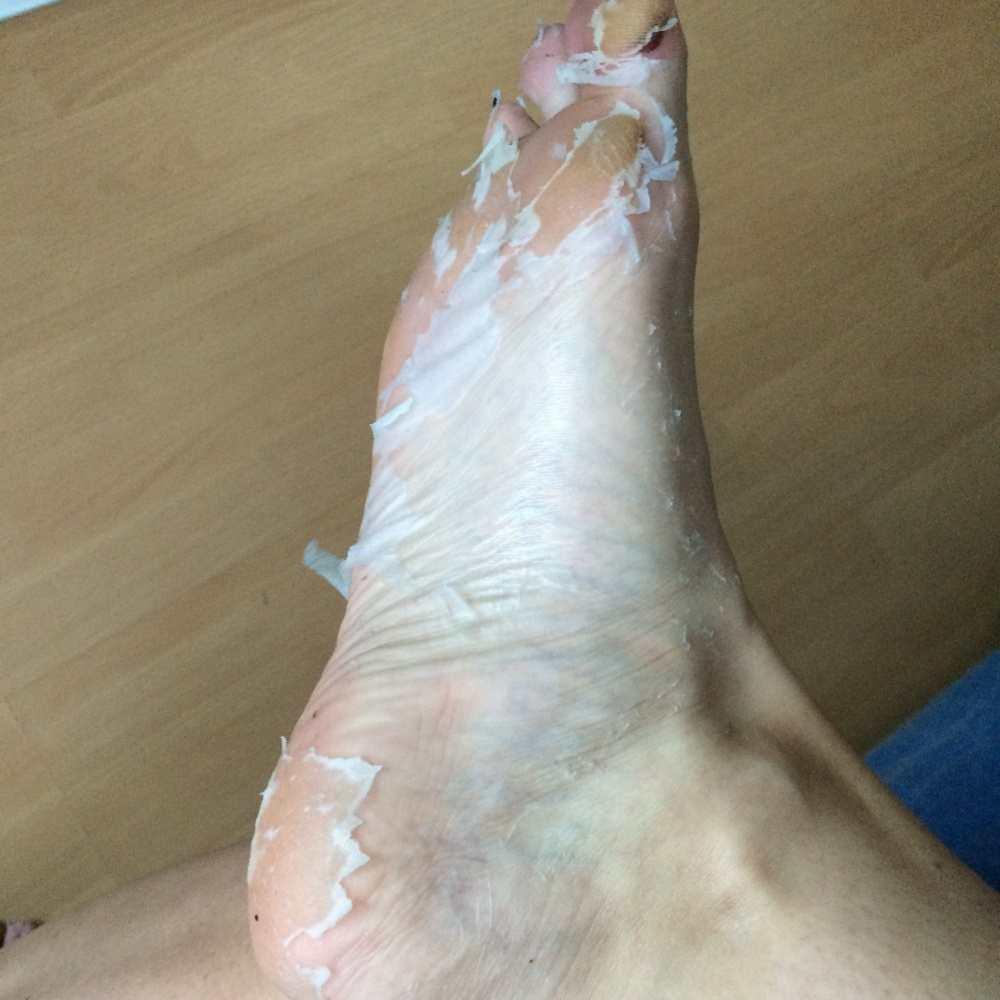 Footner Exfoliating Socks Results TheFuss.co.uk