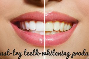 Must-Try Teeth Whitening Products TheFuss.co.uk