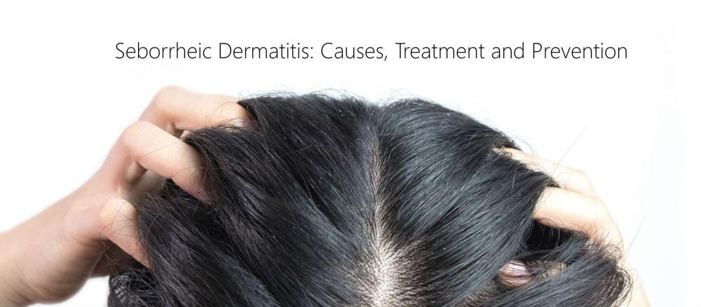 Seborrheic Dermatitis: Causes, Treatment and Prevention - The Fuss
