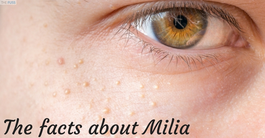 The facts about Milia TheFuss.co.uk