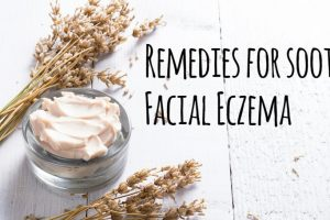 Remedies for soothing Facial Eczema