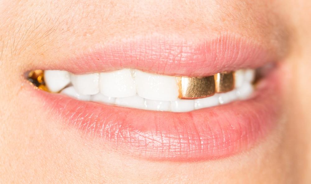 Strange dental requests
